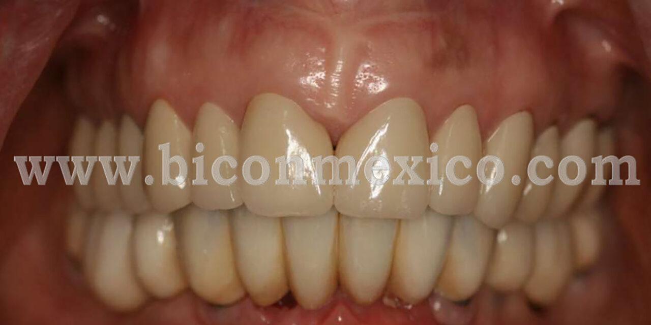 https://biconmexico.com/wp-content/uploads/2020/01/CASO-CLINICO-1280x640.jpg