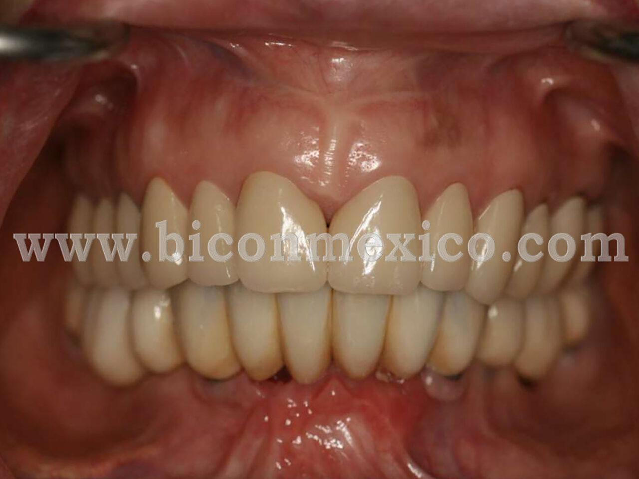 https://biconmexico.com/wp-content/uploads/2020/01/CASO-CLINICO-1280x960.jpg
