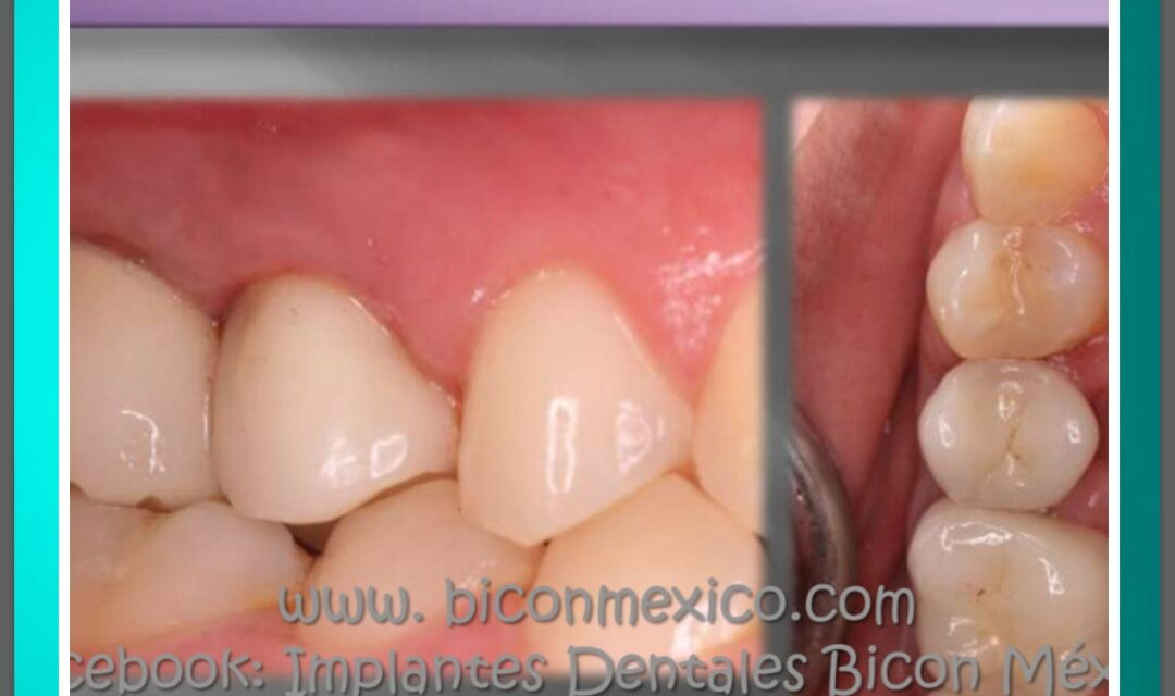 https://biconmexico.com/wp-content/uploads/2020/01/WhatsApp-Image-2021-06-19-at-6.32.53-PM-1080x640.jpeg