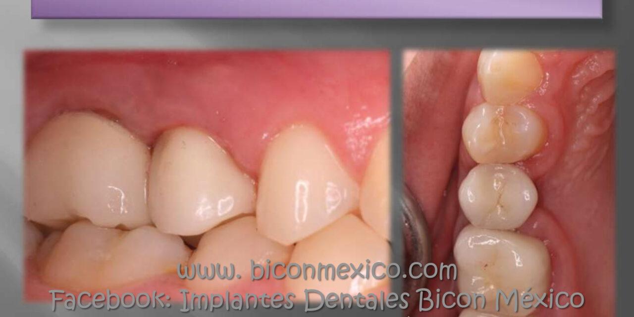 https://biconmexico.com/wp-content/uploads/2021/04/CASO-CLINICO-12-1280x640.jpg